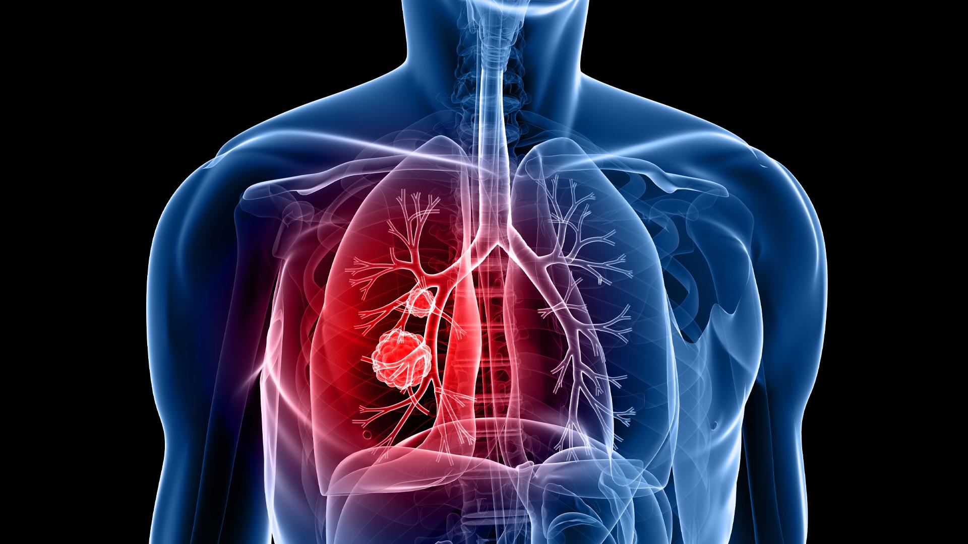Вебинар «Разборы сложных клинических случаев лечения рака лёгкого»