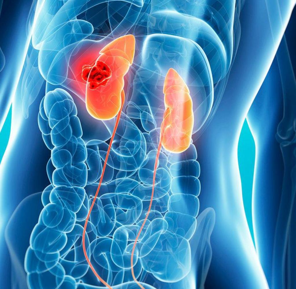 Вебинар «Разборы сложных клинических случаев лечения рака почки»