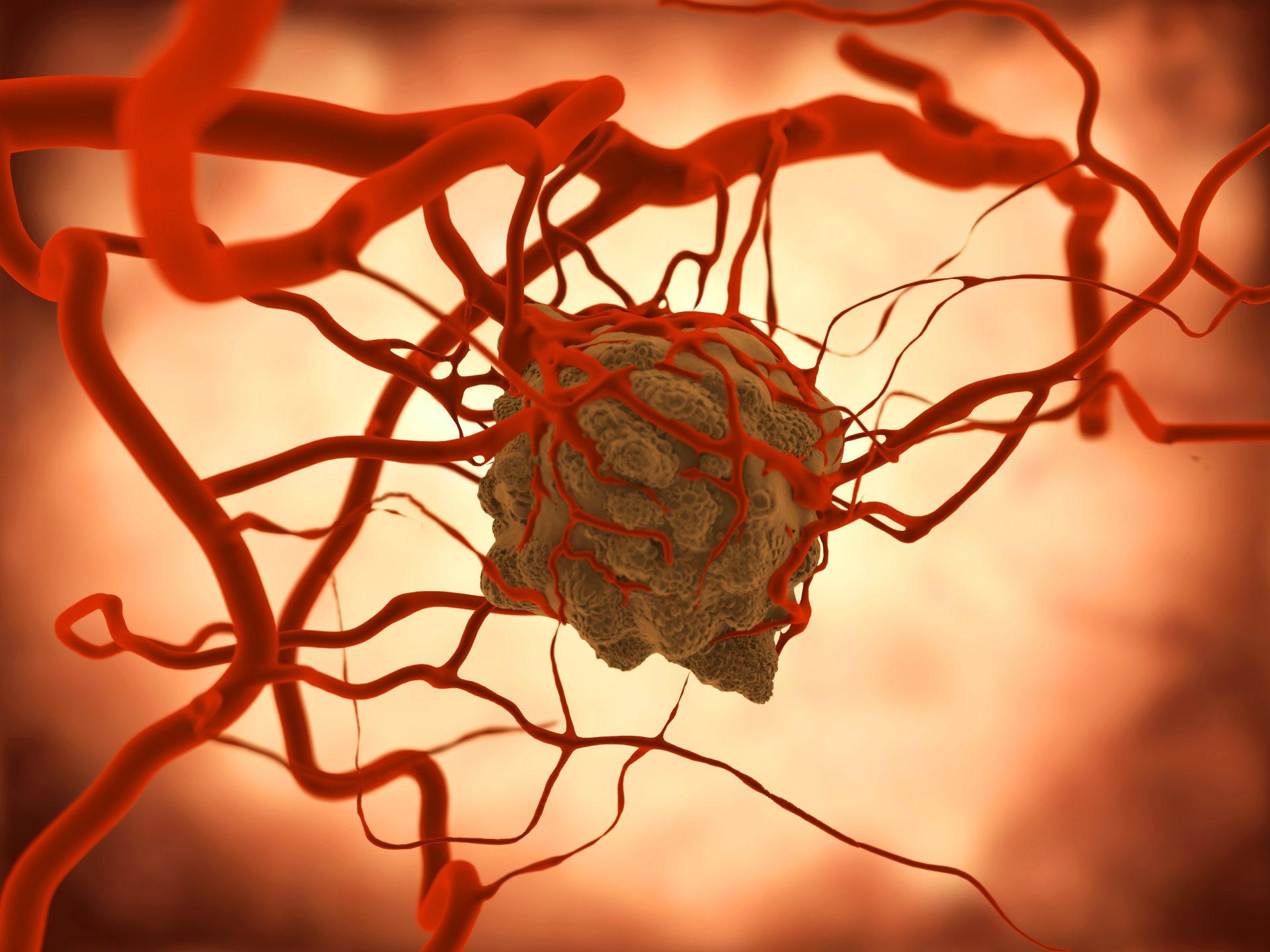 Вебинар «Современные возможности иммунотерапии солидных опухолей различной локализации»